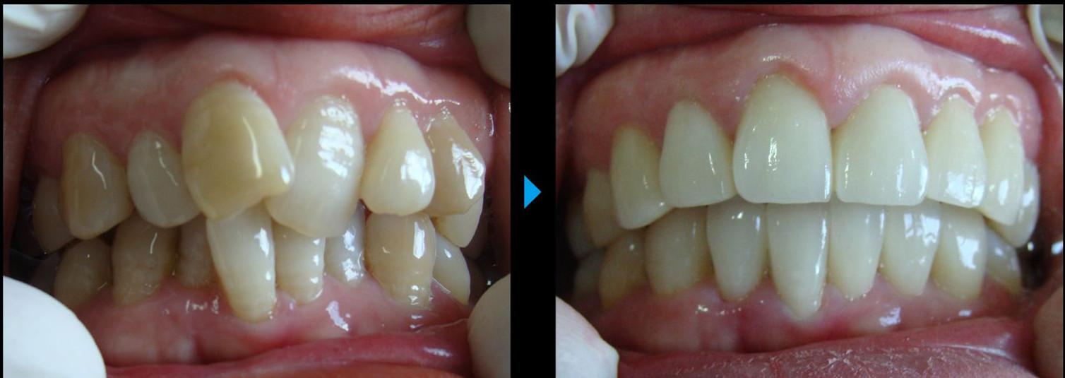 福州儿童牙齿矫正价格受哪些方面的影响?
